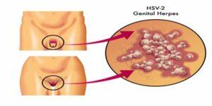 el herpes genital