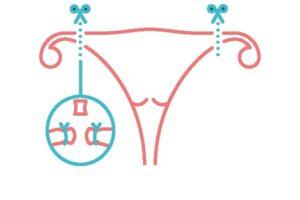 la esterilización de la mujer