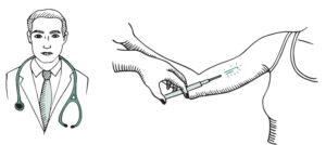 el implante subdérmico