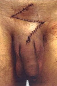 después de la operación